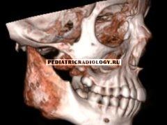 Хронический рецидивирующий остеомиелит челюсти