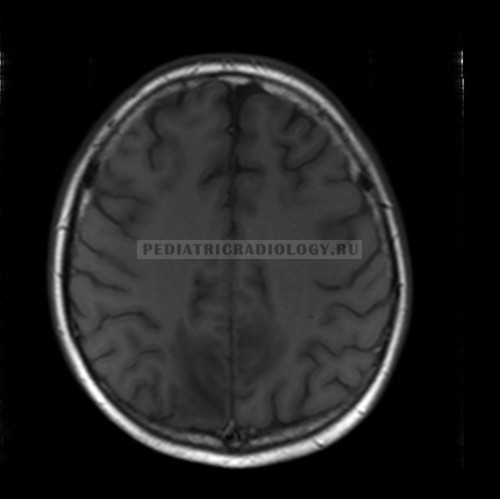 pres-syndrome-mri-t1wi