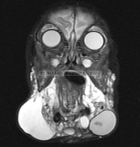 лимфангиома МРТ STIR