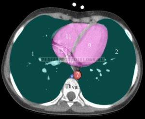 нормальная рентгеноанатомия легких
